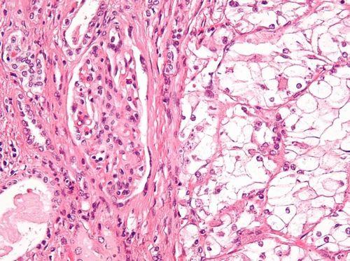 怎么保护前列腺如何保护前列腺前列腺怎么保养